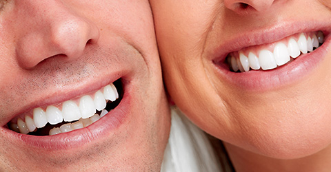Dentist Beaconsfield - Tooth Whitening