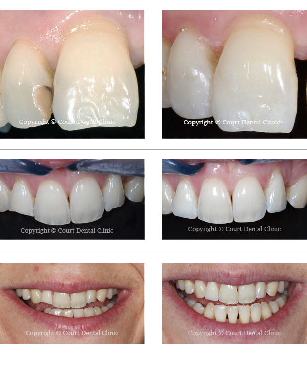 Beaconsfield Dental Practice - White Fillings - before and after treatment